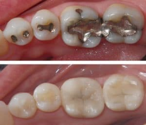 photo showing teeth with amalgam fillings and teeth with resin composite fllings